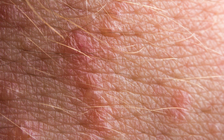 lesions: Close up macro poison ivy rash blisters on human skin Stock Photo