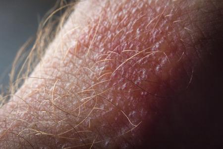 sarpullido: Close up macro poison ivy rash blisters on human skin Foto de archivo