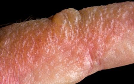 Close up macro poison ivy rash blisters on human skin Stock Photo