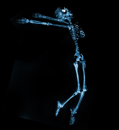 Silly dancing skeletons as seen through an xray machine Stock Photo