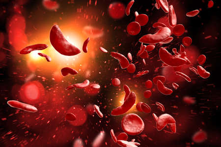 Sickle cell anemia disease (SCD) blood cells 3D illustration