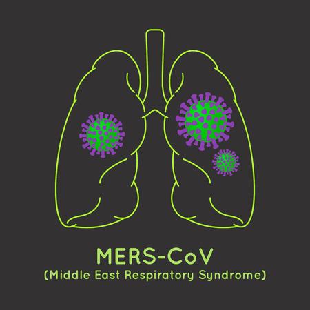 MERS-CoV(Middle East respiratory syndrome coronavirus) image illustration