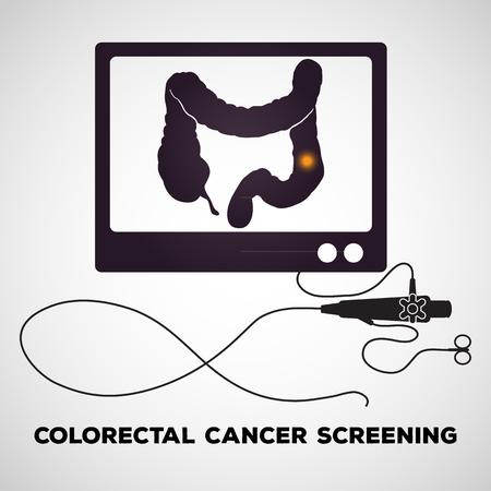 Colonoscopy procedure used for screening colon diseases Illustration