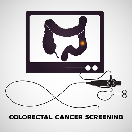 Colonoscopy procedure used for screening colon diseases Illustration