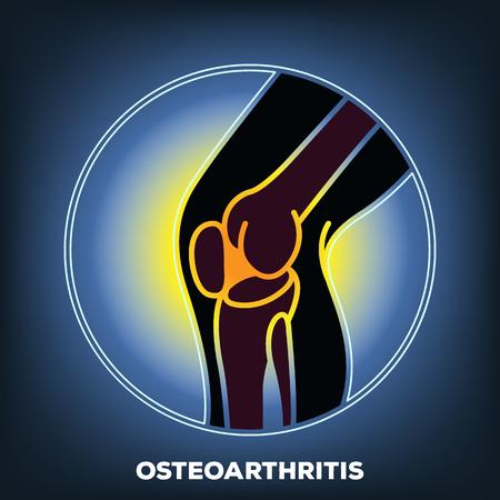 artrosis: osteoartritis