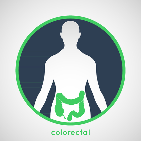 colon cancer: Colorectal