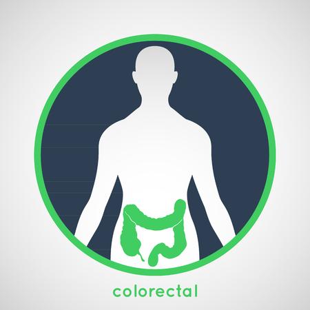 rectum: Colorectal