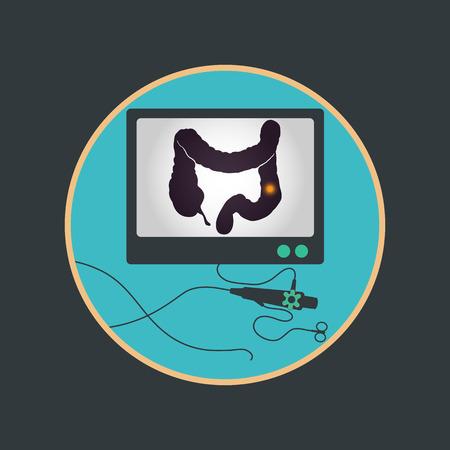 Colonoscopy procedure used for screening colon diseases 일러스트
