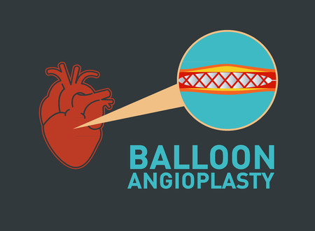 BALLOON ANGIOPLASTY vector icon design Illustration