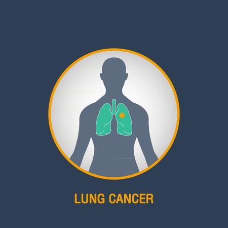 lung cancer: LUNG CANCER vector  icon design