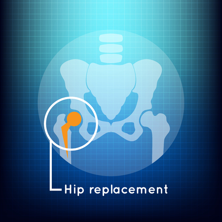 osteoarthritis: Hip replacement logo vector icon design