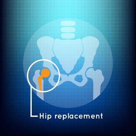 Hip vervanging logo vector pictogram ontwerp
