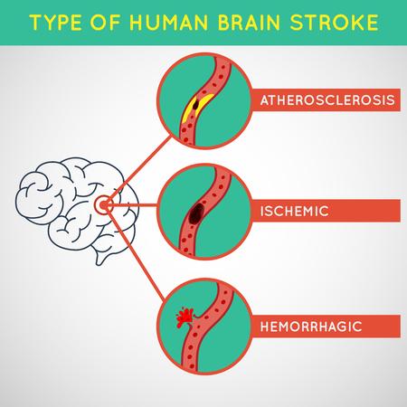 Brain stroke vector illustrator
