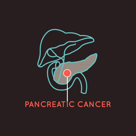 pancreatic cancer vector logo icon illustration