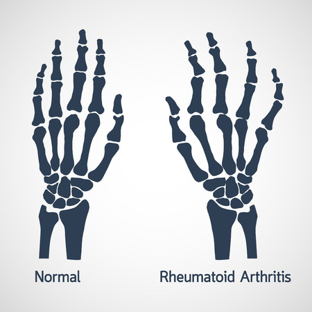Rheumatoid Arthritis vector icon illustration