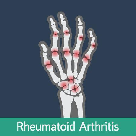polyarthrite rhumatoïde vecteur icône illustration Vecteurs