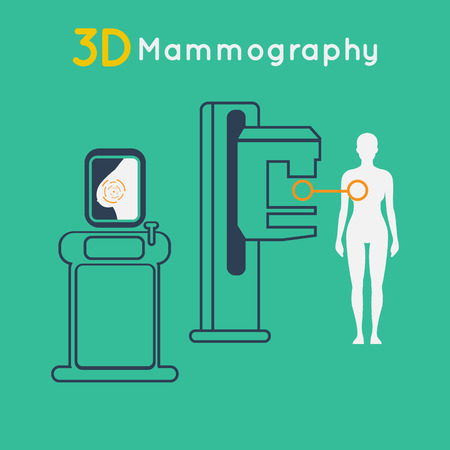 Breast cancer, 3D Mammography vector illustration Ilustracja