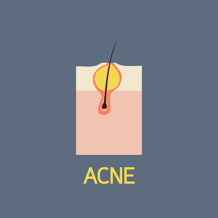 ACNE vector icon illustration