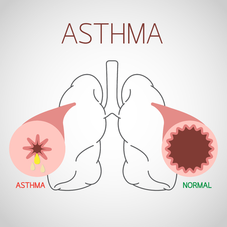 Asthma vector icon illustration