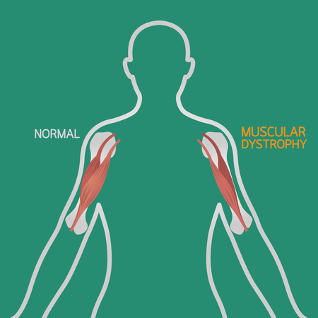Muscular dystrophy vector illustration