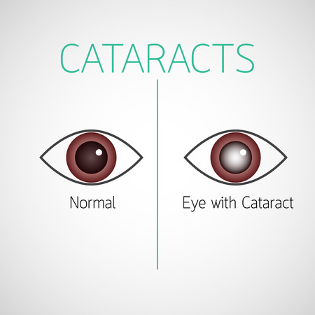 Cataracts vector icon illustration Ilustracja