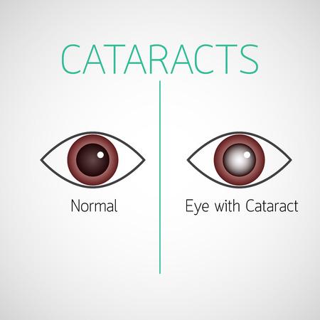 Cataracts vector icon illustration Vectores