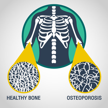 Osteoporosis vector logo icon illustration