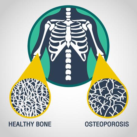 Osteoporosevektorlogo-Ikonenillustration