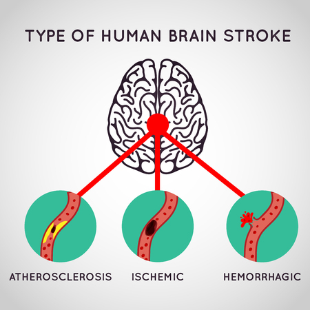Brain Stroke vector logo icon illustration Illustration