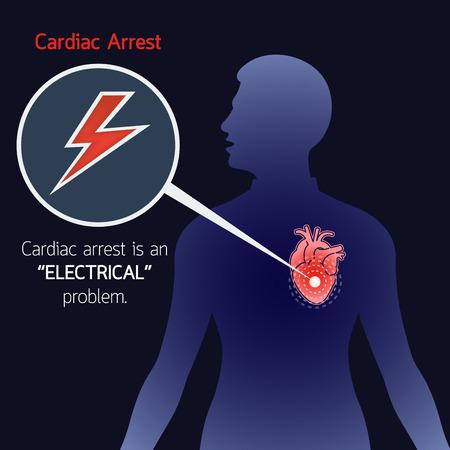 Zatrzymanie serca wektor logo ikona ilustracja