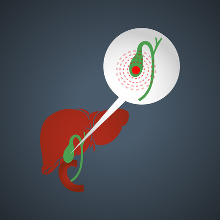 Cholecystitis vector logo icon illustration Illustration