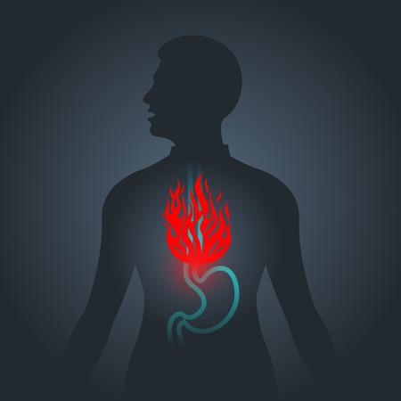 Dyspepsia vector logo icon illustration