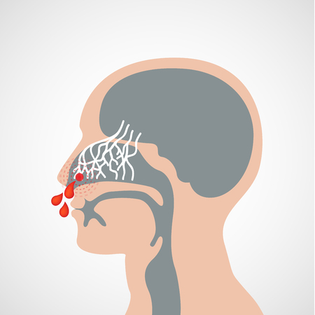 Epistaxis vector logo pictogram illustratie Stock Illustratie