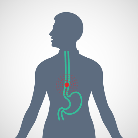 Esophageal Cancer vector logo icon illustration