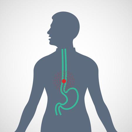 Esophageal Cancer vector logo icon illustration