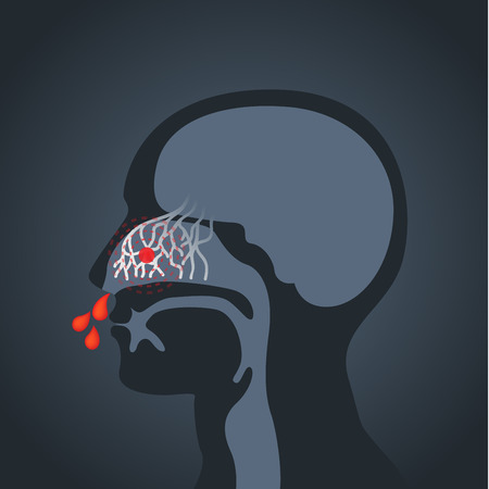 Nosebleed vector logo pictogram illustratie