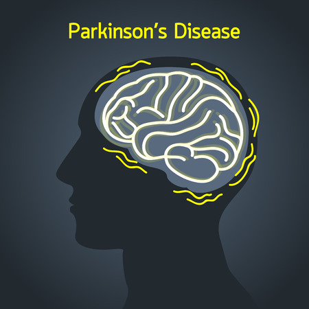 ParkinsonÕs disease vector logo icon illustration