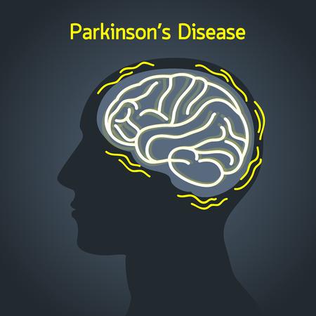 ParkinsonÕs disease vector logo icon illustration