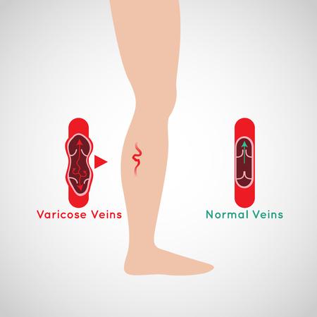 Varicose Veins vector logo icon illustration