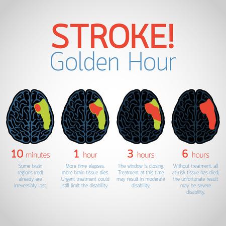 Stroke Golden Hour infographic vector logo icon illustration Illustration