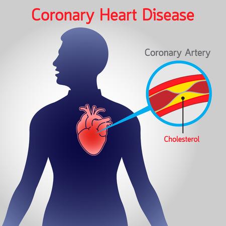 Coronaire hartziekte vector pictogram illustratie Stock Illustratie