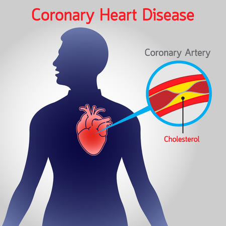 Coronary Heart Disease vector icon illustration Illustration