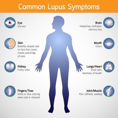 Common lupus symptoms vector icon illustration