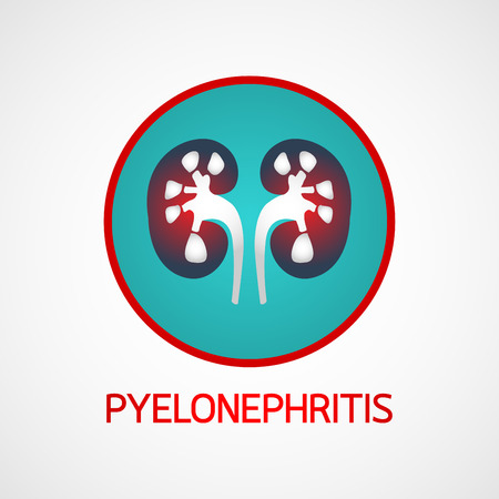 Pyelonephritis vector icon illustration