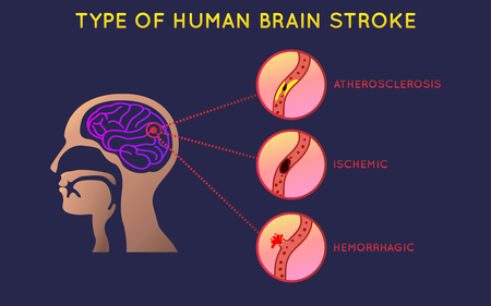 Brain stroke icon design, info-graphic health, medical info-graphic. Vector illustration.