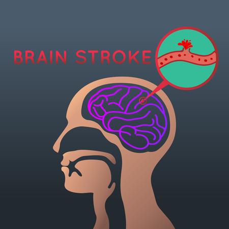 Brain stroke icon design, info-graphic health, medical info-graphic. Vector illustration.