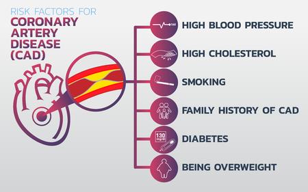 Choroba niedokrwienna serca, kardiomiopatia niedokrwienna, projekt ikon choroby wieńcowej (CAD), grafika informacyjna zdrowia, grafika informacyjna medyczna. Ilustracji wektorowych.