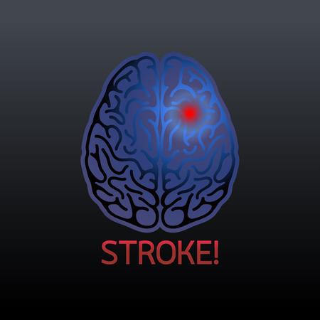 Brain stroke vector illustrator on black background.