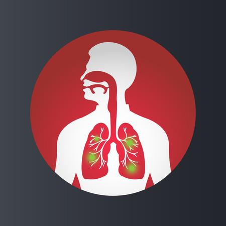 TUBERCULOSIS vector icon illustration