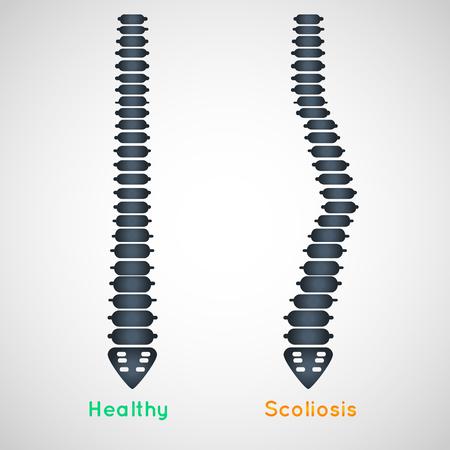 Scoliosis logo icon design, medical vector illustration Stock Vector - 122525499